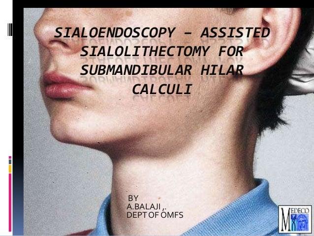 SIALOENDOSCOPY – ASSISTED SIALOLITHECTOMY FOR SUBMANDIBULAR HILAR CALCULI  BY A.BALAJI ,. DEPT OF OMFS