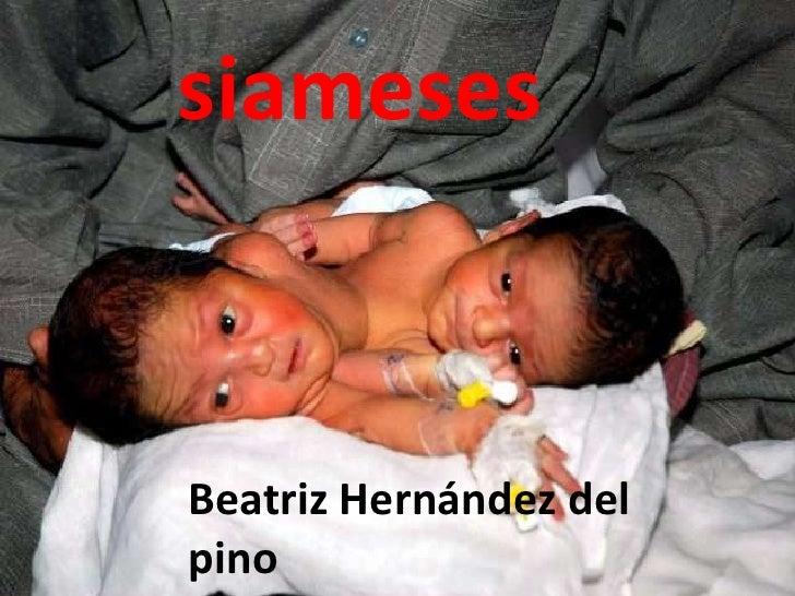 siameses<br />Beatriz Hernández del pino<br />