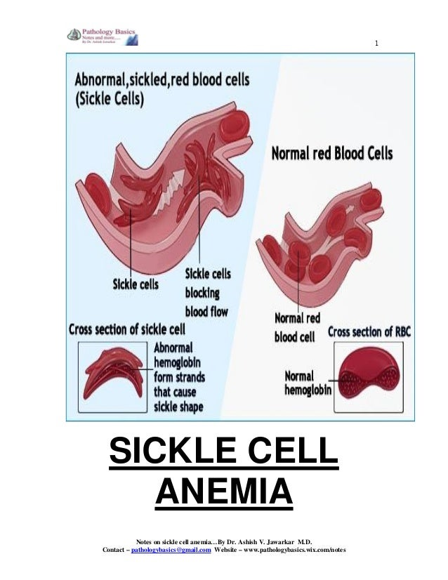 a description of the sickle cell anemia Sickle cell anemia, or sickle cell disease (scd), is a genetic disease of the red blood cells (rbcs) normally, rbcs are shaped like discs, which gives them the flexibility to travel through.