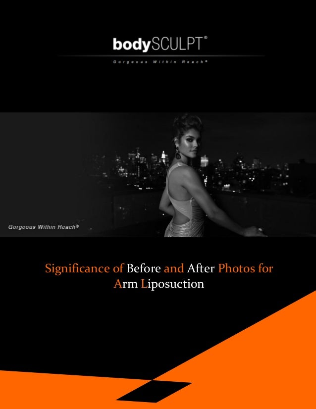 Significance of Before and After Photos for Arm Liposuction