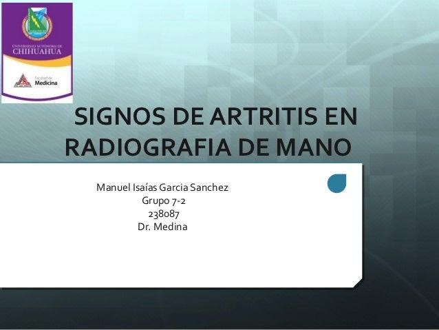 SIGNOS DE ARTRITIS ENRADIOGRAFIA DE MANO  Manuel Isaías Garcia Sanchez           Grupo 7-2             238087           Dr...