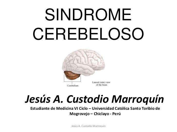 SINDROME CEREBELOSO<br />Jesús A. Custodio Marroquín<br />Jesús A. Custodio Marroquín<br />Estudiante de Medicina VI Ciclo...