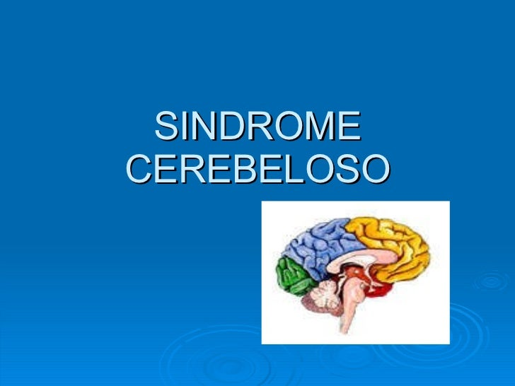 Sindrome cerebeloso ppt