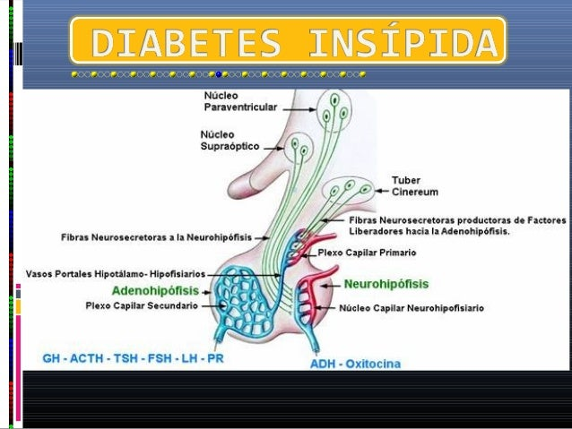 se clasifica la diabetes insípida según las causas en diabetes