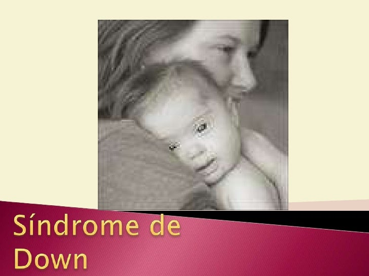 Tratamiento dental Sindrome Down