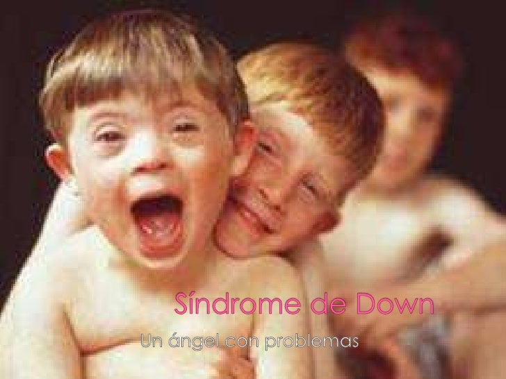    El síndrome de Down (SD) es un trastorno    genético causado por la presencia de    una copia extra del cromosoma 21 (...
