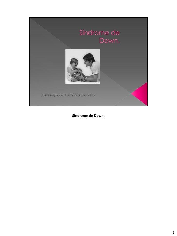 Sindrome de down pdf
