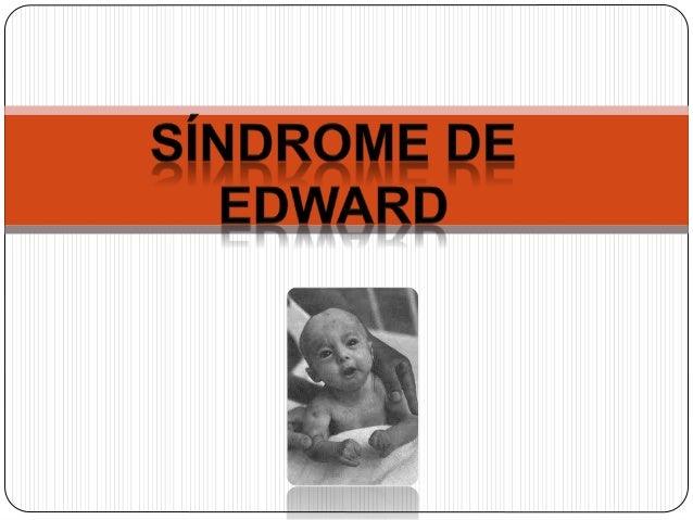  Foi descrito por John Edwards no ano de 1960  em bebês que apresentavam malformações  congênitas múltiplas e retardament...
