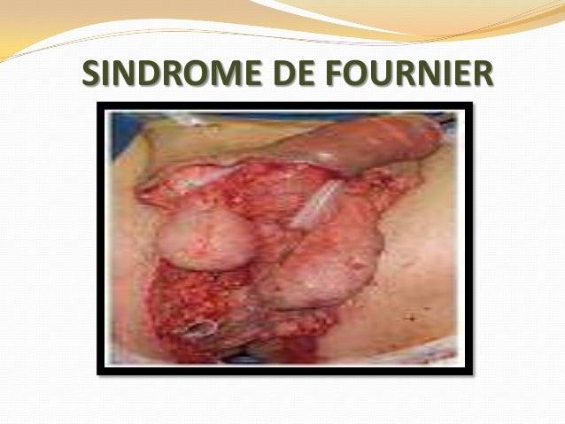 SINDROME DE FOURNIER