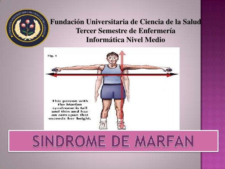 SINDROME DE MARFAN