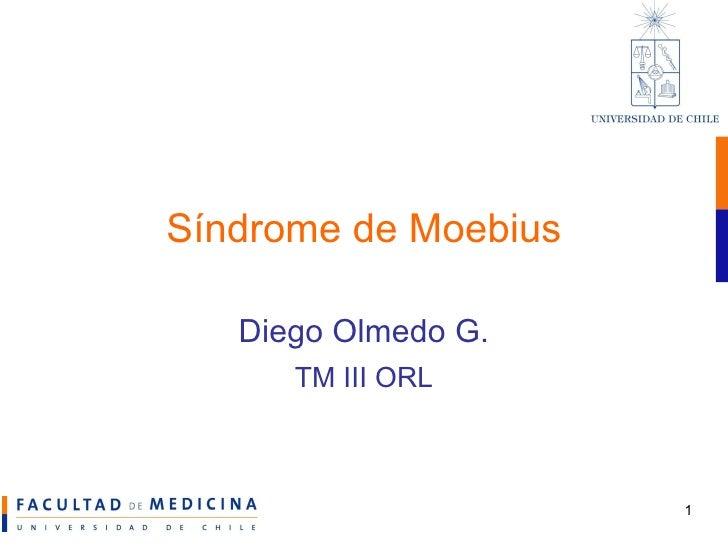 Sindrome de Moebius