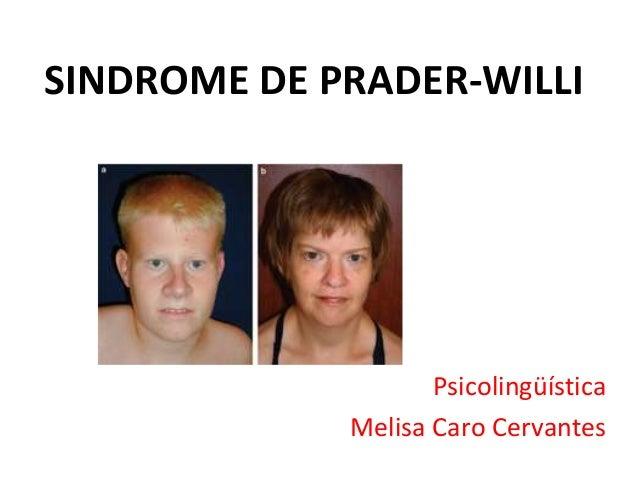 SINDROME DE PRADER-WILLI Psicolingüística Melisa Caro Cervantes