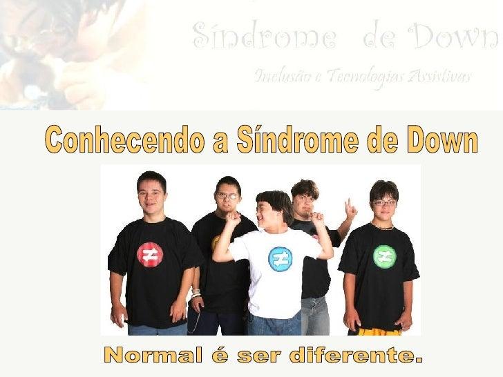 Sindromedown Grupo F Rs 01