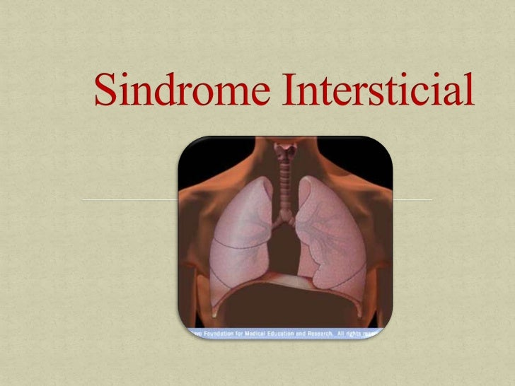 Sindrome intersticial