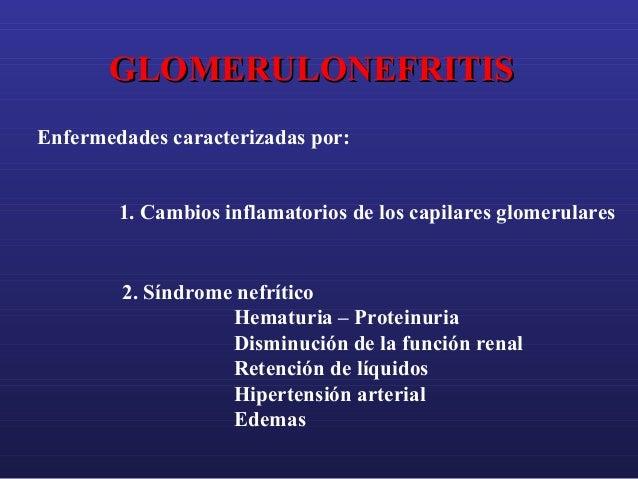 GLOMERULONEFRITIS Enfermedades caracterizadas por: 1. Cambios inflamatorios de los capilares glomerulares  2. Síndrome nef...