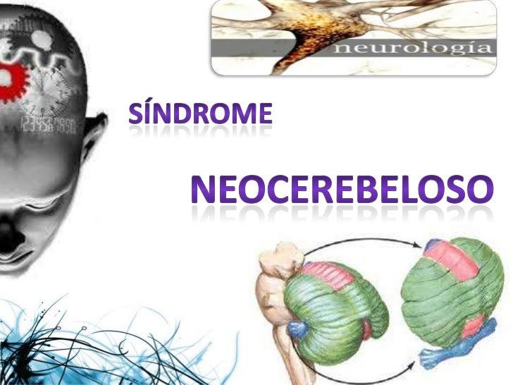Sindrome neocerebeloso