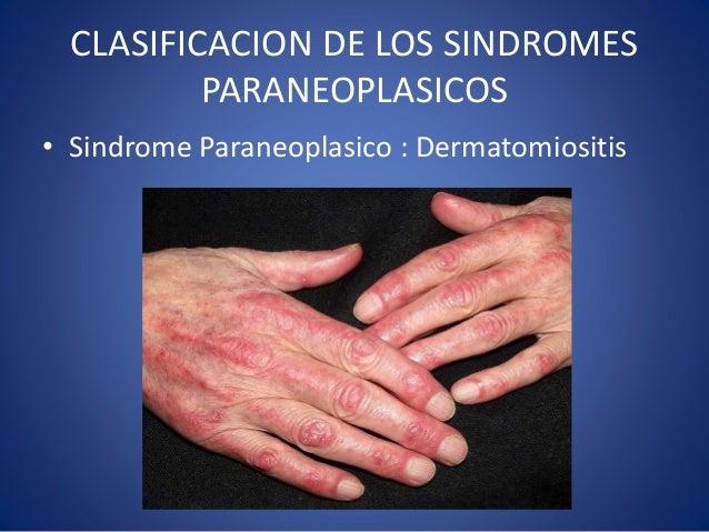 Psoriasis remedios caseros para tratar los sintomas y - Remedios contra la humedad ...