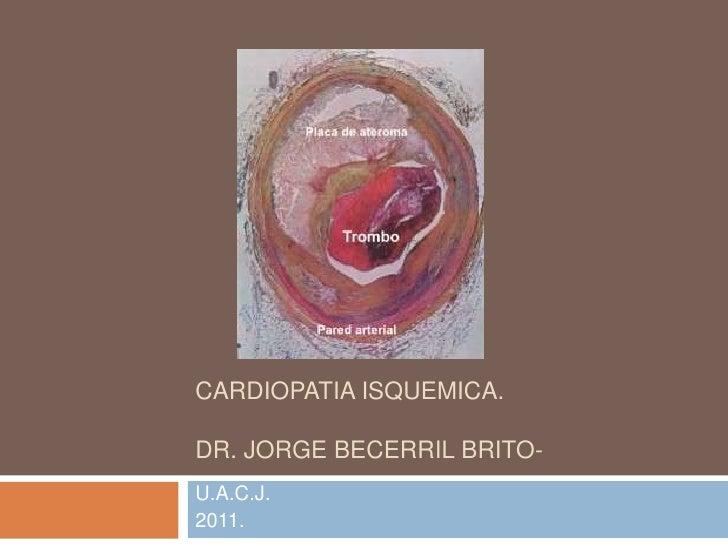 CARDIOPATIA ISQUEMICA.DR. JORGE BECERRIL BRITO-U.A.C.J.2011.