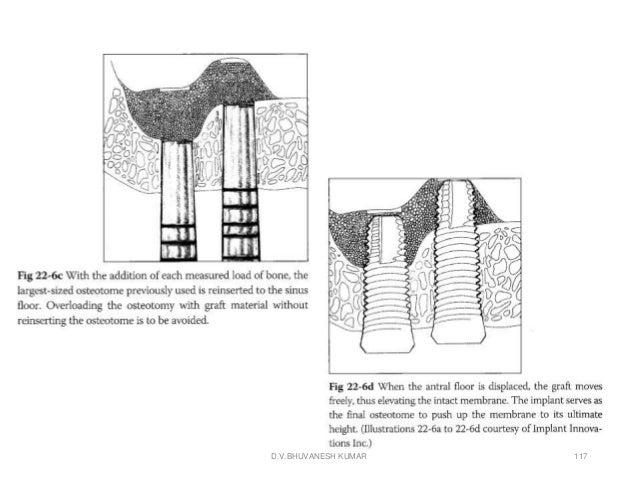 Sinus Floor Elevation With Osteotomes : Sinus elevation grafts