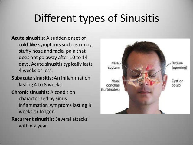 Types Of Sinus Surgeries