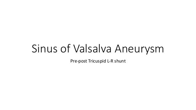 Sinus of Valsalva Aneurysm Pre-post Tricuspid L-R shunt