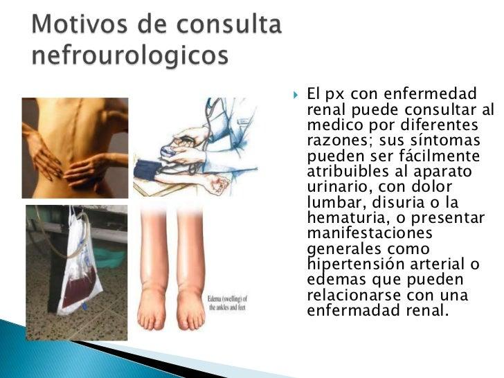 Motivos de consulta nefrourologicos<br />El px con enfermedad renal puede consultar al medico por diferentes razones; sus ...