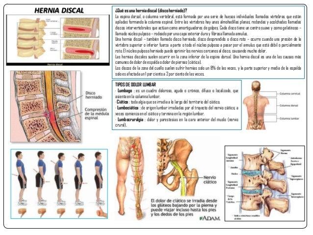 Los dolores sobre la espalda por las dos partes de la columna vertebral