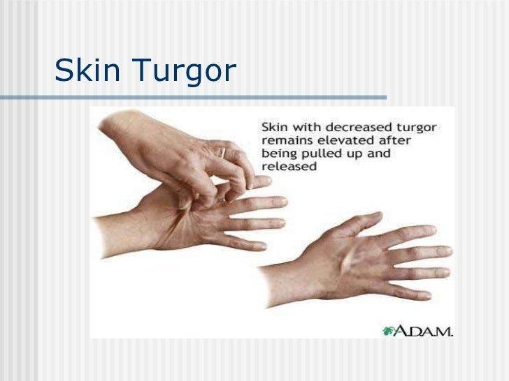 nursing care plan for poor skin turgor Nursing care plan nursing diagnosis definition: the state in which an individual who is not npo experiences or is at risk of experiencing vascular, interstitial or intracellular dehydration.