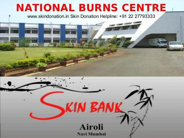 • NATIONAL BURNS CENTRE www.skindonation.in Skin Donation Helpline: +91 22 27793333