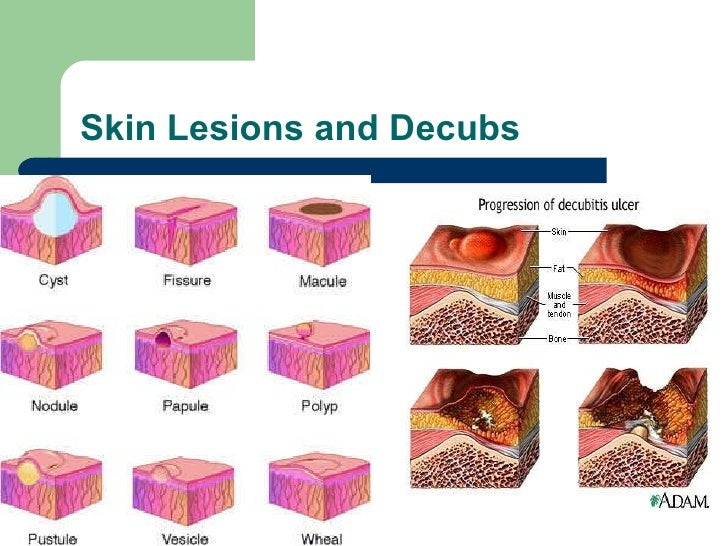Skin Lesions – Causes, Pictures, Types, Symptoms, Treatment