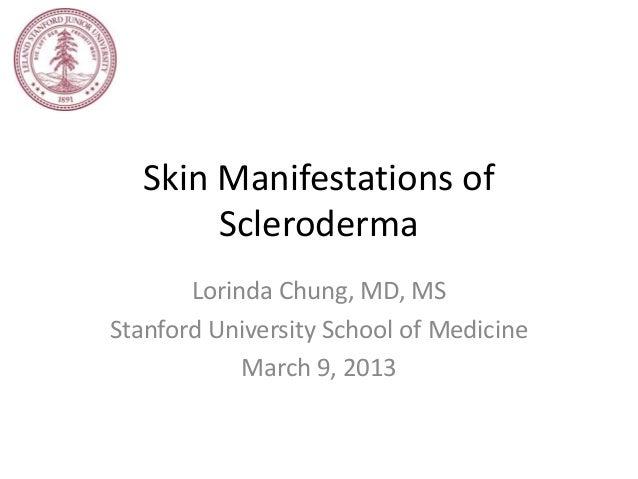 Skin Manifestations of        Scleroderma       Lorinda Chung, MD, MSStanford University School of Medicine            Mar...