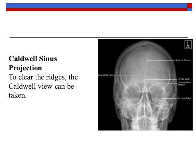 X ray skull anatomy