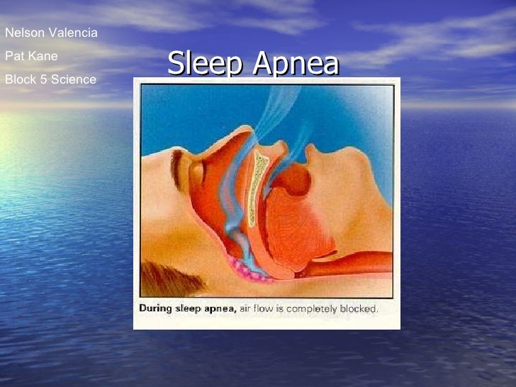 Sleep Apnea Nelson Valencia Pat Kane Block 5 Science