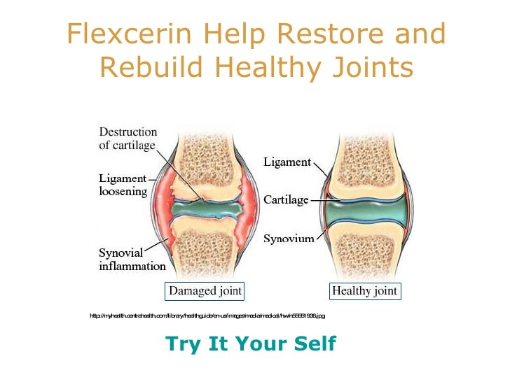 Flexcerin Reduce Pain Joint And Inflammation. Sales Strategy Templates Brow Lift With Botox. What Is A Liberal Arts College. Sql Server 2012 Online Training. Sharepoint Backup Software Tier One Security. Beginning Sounds For Kindergarten. Kernel For Windows Data Recovery. Chiropractors In Austin Ppi Merchant Services. San Francisco Giants Salaries