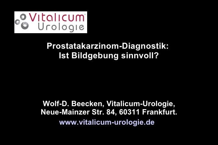 Prostatakarzinom-Diagnostik:  Ist Bildgebung sinnvoll? Wolf-D. Beecken, Vitalicum-Urologie, Neue-Mainzer Str. 84, 60311 Fr...