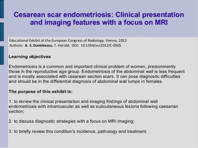 Cesarean scar endometriosis: Clinical presentation      and imaging features with a focus on MRIEducational Exhibit at the...