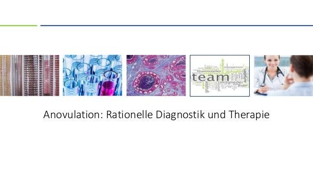 Anovulation: Rationelle Diagnostik und Therapie
