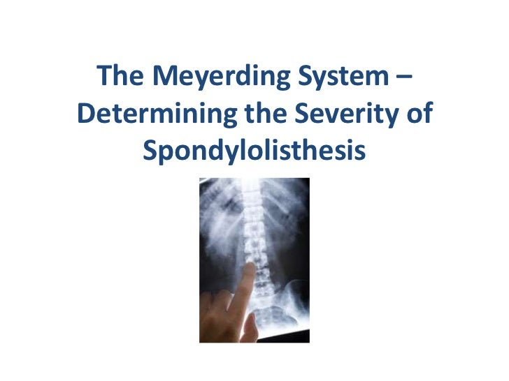 The Meyerding System – Determining the Severity of Spondylolisthesis