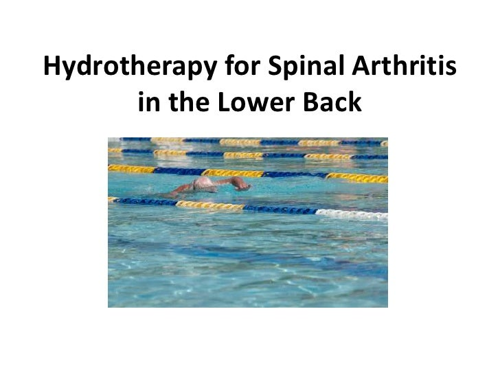Spinal Arthritis in the Lower Back & Hydrotherapy