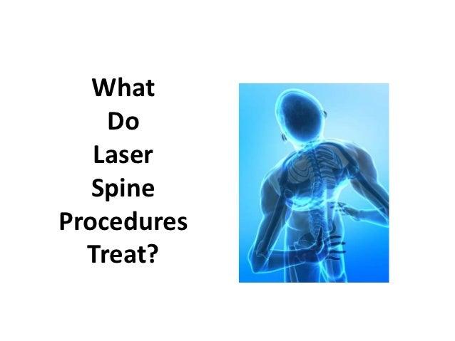 What    Do   Laser   SpineProcedures  Treat?