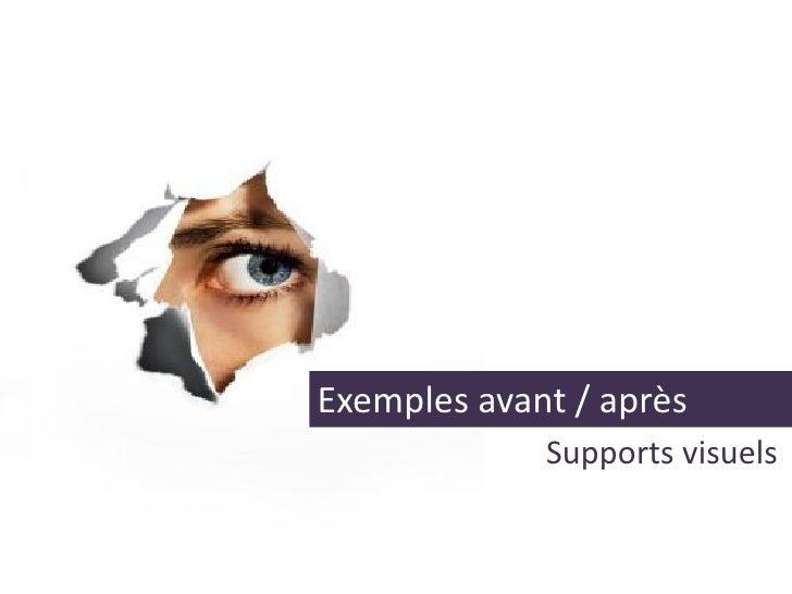 Exemples avant / après              Supports visuels