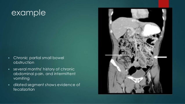 Small Bowel Obstruction
