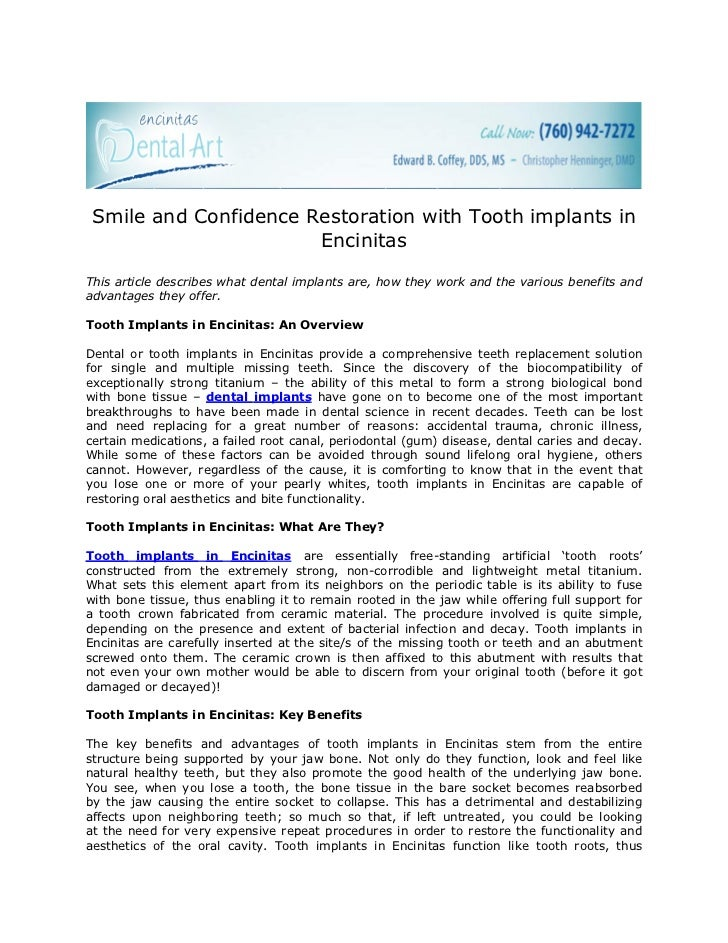 Smile and Confidence Restoration with Tooth implants in                       EncinitasThis article describes what dental ...