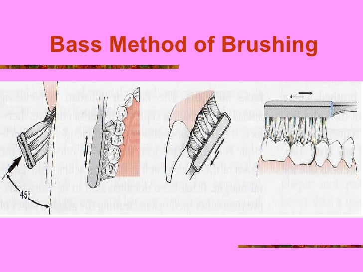 modified bass method There are 5 commonly used brushing techniques: bass or modified bass,  charters, modified stillman, rolling stroke and modified stroke while the rolling .