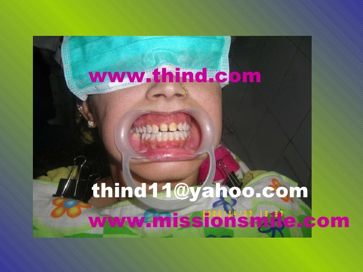 www.thind.com [email_address] www.missionsmile.com
