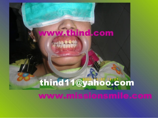 www.thind.comthind11@yahoo.comwww.missionsmile.com
