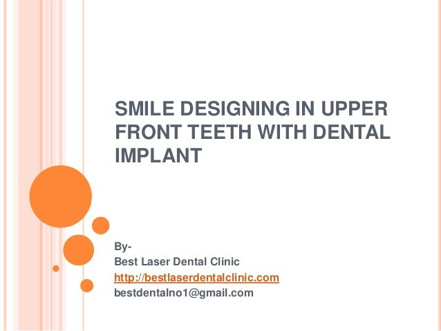 Smile designing in upper front teeth with dental implant