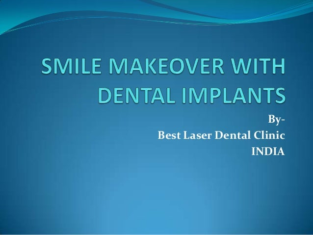 Smile makeover with dental implants in chennai