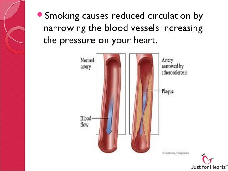 the damage caused by smoking There has not been any treatment shown to reverse the natural aging process quitting smoking, however, while not able to reverse the damage, can cert.