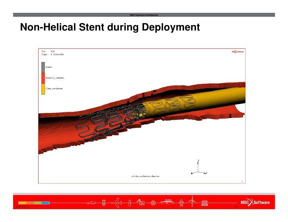 Nitinol Stent Deployment Stent During Deployment